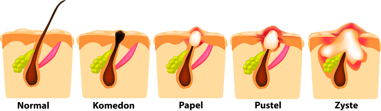 Entwicklung von Akne